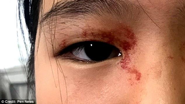 عارضه نادر تعریق خونی دختر ۱۱ ساله+تصاویر