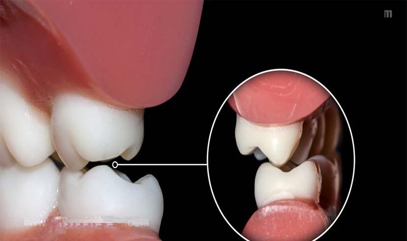 عارضه ای که در خواب به سراغتان می آید/اضطراب مهم ترین عامل ایجاد دندان قروچه