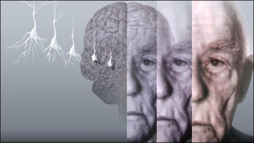 رابطه گروه های خونی با بیماری آلزایمر چیست؟