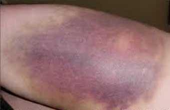 کیمیاگری درمانی؛ تبدیل زخم باز به پوست