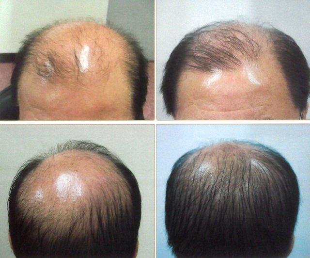 با این روش جدید دیگر نگران ریزش موهایتان نباشید+جزئیات