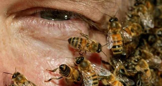 کلکیسیون «طب حاشیه» از خوردن جوجه تیغی با چاشنی لجن تا انداختن زنبورهای سمی به جان چشم بیمار!