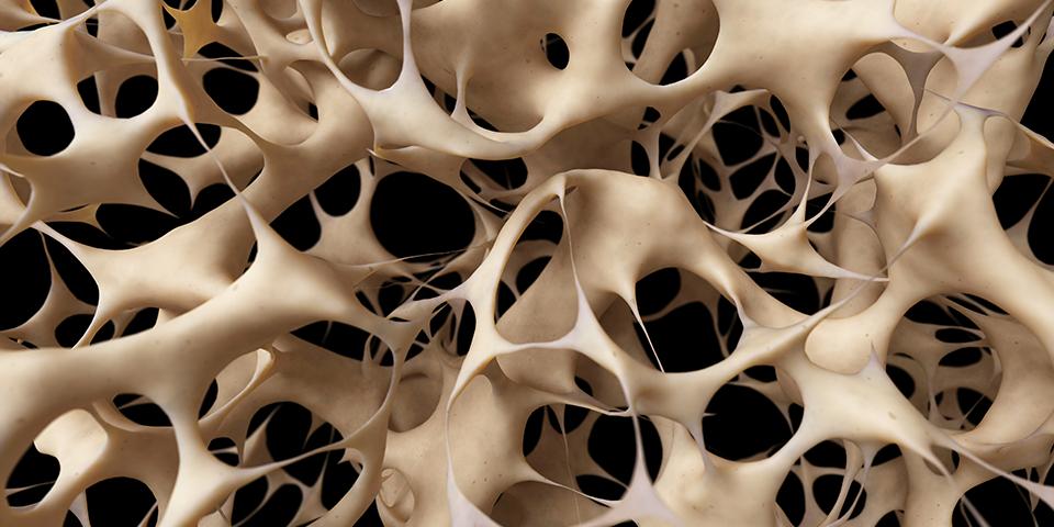 طب سنتی؛ خواص معجزه آساى این دانه هاى سفید رنگ برای مبارزه با پوکی استخوان