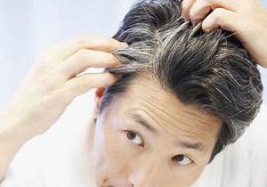 علت سفید شدن زودرس موها چیست؟