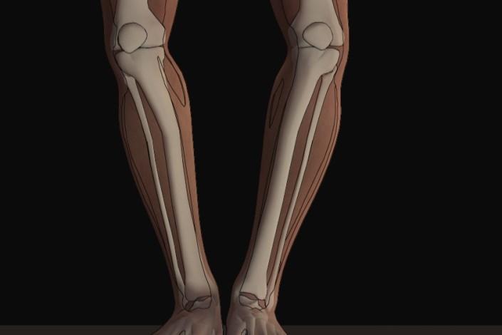 عارضه پای پرانتزی؛ از ابتلا تا درمان