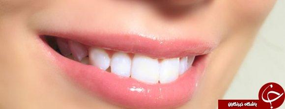 چطور میتوان با زردچوبه دندانها را سفید کرد؟ / روشهای سفید کردن دندان با زردچوبه