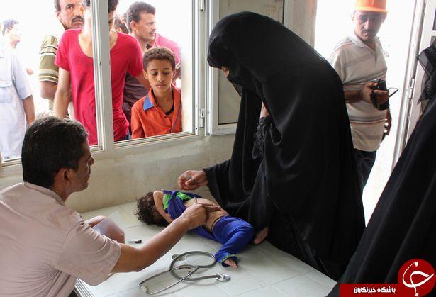 تصاویری دردناک از کودکان قحطی زده یمن