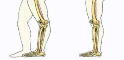 ورزشهای مناسب برای درمان زانوهای عقب رفته + تصاویر