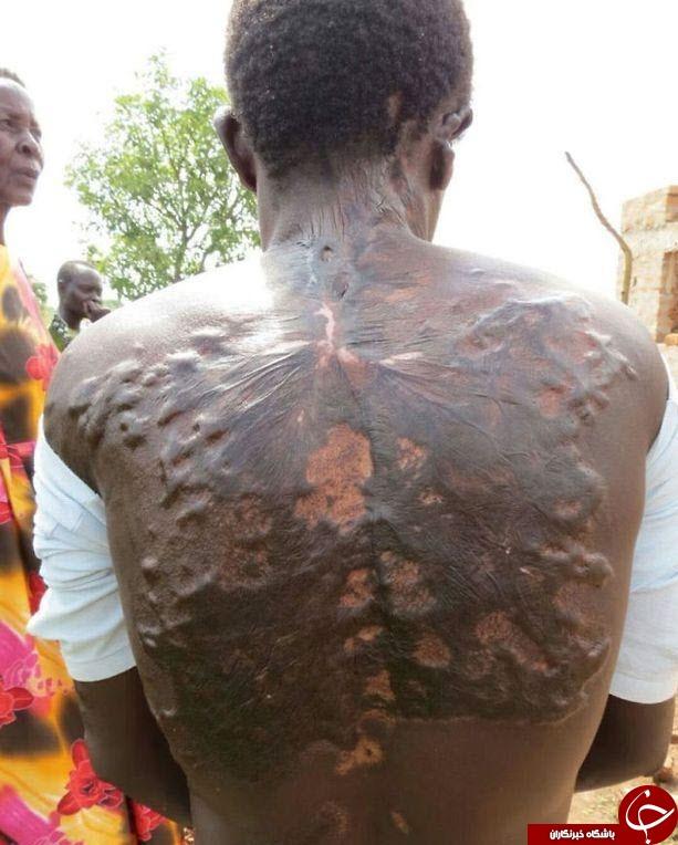 اصابت صاعقه با بدن انسان چه کار می کند! + تصاویر