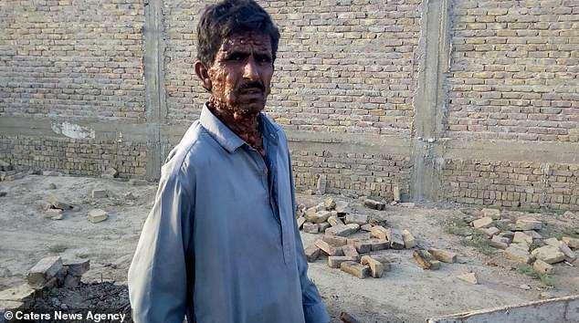 بیماری وحشتناک مرد پاکستانی سوژه رسانه ها شد + فیلم//