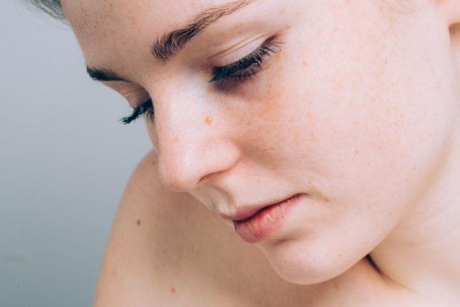 این ده عارضه پوستی را جدی بگیرید/چه زمانی باید به پزشک مراجعه کرد؟