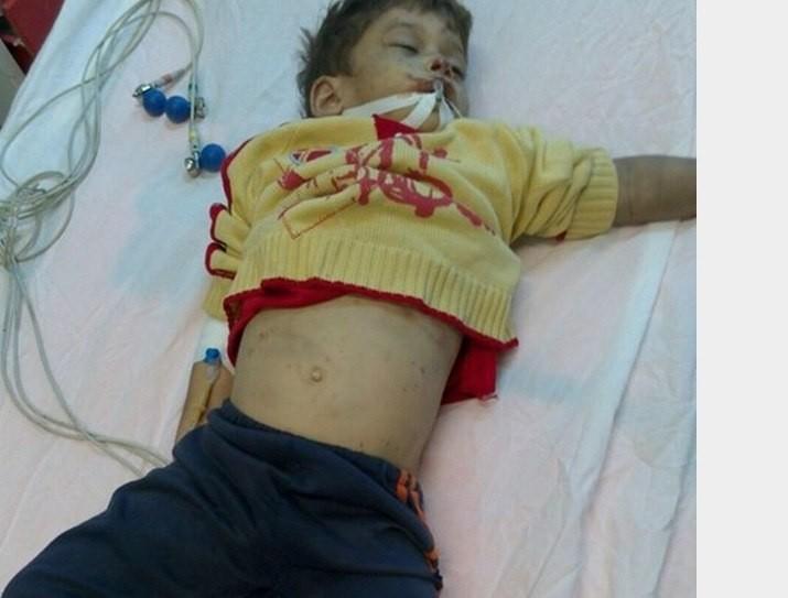 مرگ تلخ پسر ۴ ساله زیر شکنجههای یک زن