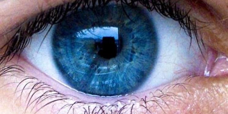 ترفندهایی برای از بین بردن پف زیر چشمها