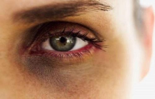 سیاهی دور چشم را با این روش خانگی نسخه پیچ کنید/راهی ساده برای درمان عفونت دندان/سبک بخوابید تا سردرد نگیرید