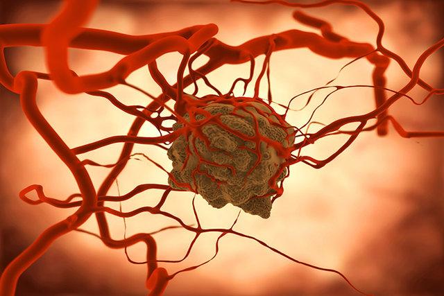 آیا داروی گیاهی به تنهایی در درمان سرطان موثر است؟