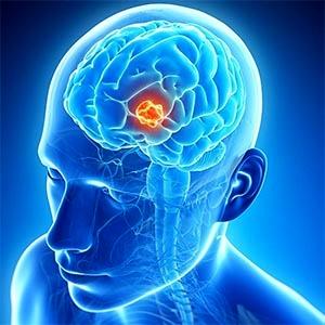 بینایی غیرطبیعی بر رشد مغز اثر میگذارد