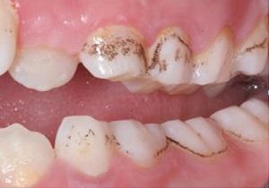 آیا قطره آهن باعث پوسیدگی و خرابی دندانهای کودک میشود؟