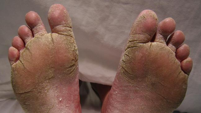 چرا کف پایمان پوسته پوسته می شود؟