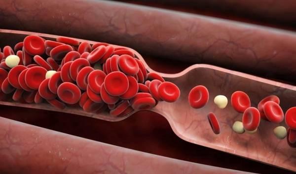 اصلی ترین علائم لخته شدن خون در بدن چیست؟