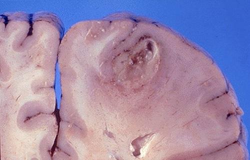 قارچهایی که در مغز به دلیل عفونت رشد میکنند/دملهای چرکی در مغز را در نطفه خفه کنید