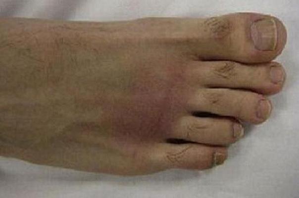 ۵ علامت آرتروز پا را بشناسید