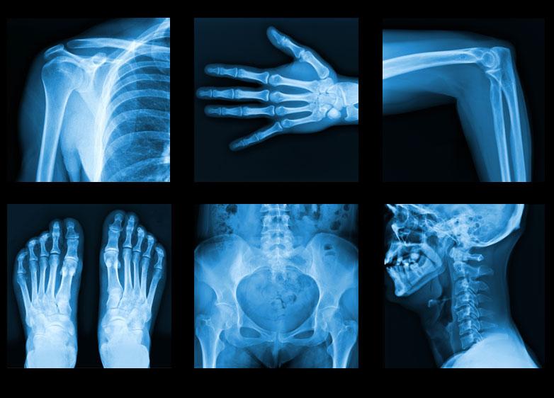 تاثیر معجزه آسای تغذیه بر استحکام استخوانها