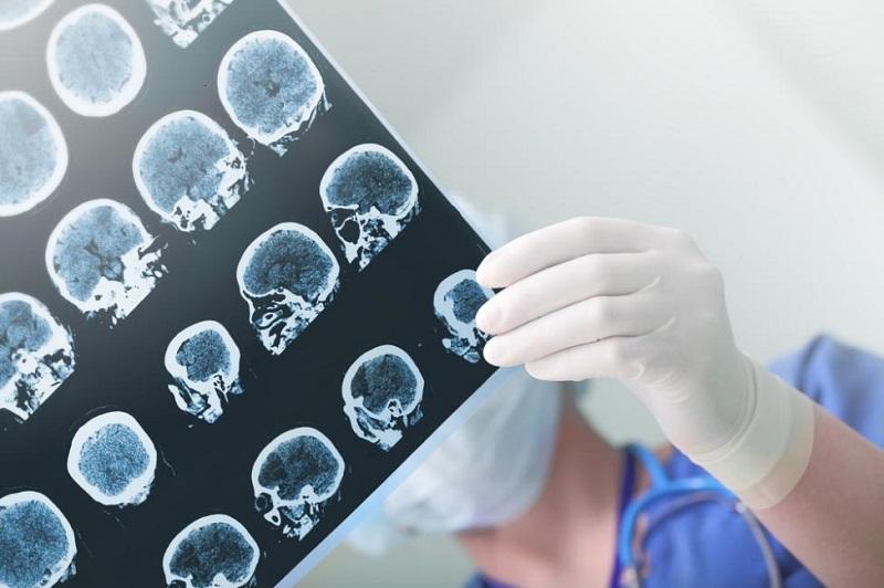 بیماری خطرناکی که به دنبال آلزایمر می آید