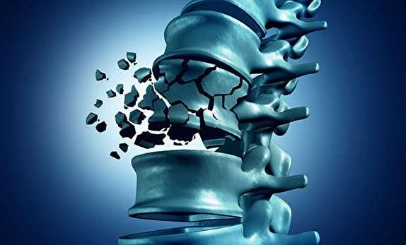 تق تق استخوانها که خبر از یک بیماری خاموش میدهند/ شکستگیهای مرگباری که با پوکی استخوان سراغتان میآید