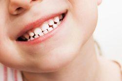 راهکارهایی جالب و  فنآورانه برای سفید کردن دندانها