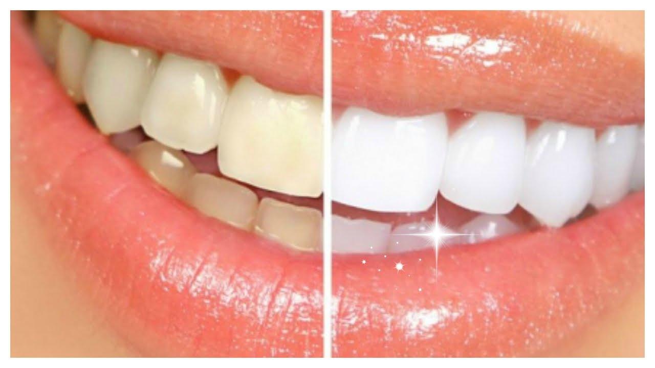 راهکارهایی فنآورانه برای سفید کردن دندانها