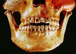 عجیبترین و خطرناکترین مدهای زیبایی در گذشته/ از سوهان کردن دندان تا تغییر شکل جمجمه! + تصاویر