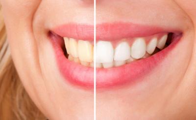 عواملی که باعث جرم گرفتن دندانهایتان می شود