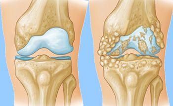 ورزشهای مناسب برای درمان آرتروز زانو + تصویر