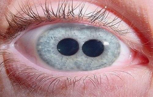 چشم دو مردمکی؛+ تصاویر