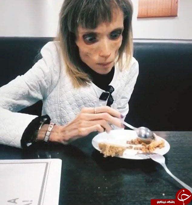 بیماری عجیبی که دختر 26 ساله را به اسکلت شبیه کرد+تصاویر