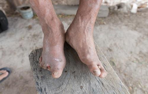 بیماری هولناکی که ذره ذره جانتان را میگیرد+ تصاویر