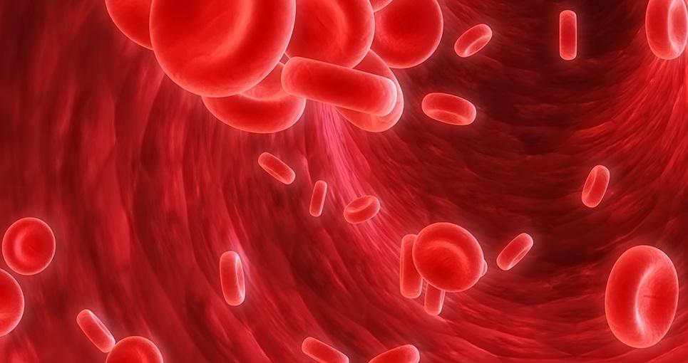 پیشگیری بهتر از درمان؛ چگونه مبتلا به کم خونی جلوگیری نشویم؟