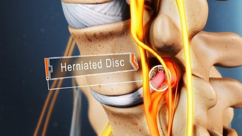 تمرینهای مناسب برای درمان دیسک گردن+ تصویر