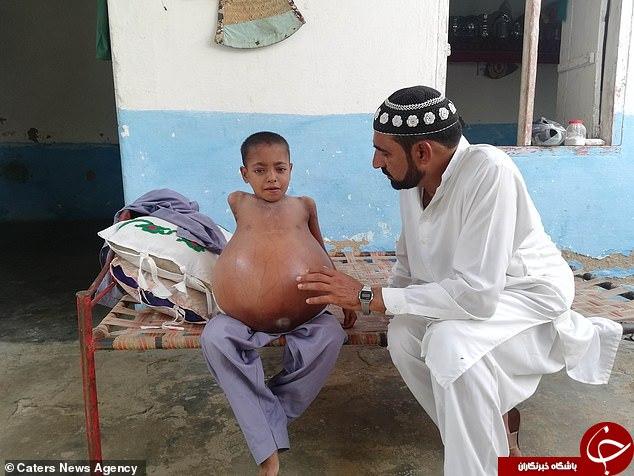 تورم غیر طبیعی شکم پسر ۹ ساله خبرساز شد+تصاویر