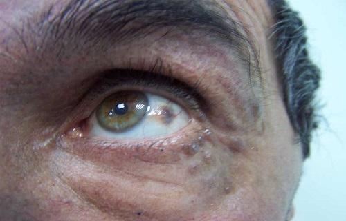 ادرار سیاه؛ بیماری که در اثر یک بیاحتیاطی کوچک به وجود میآید
