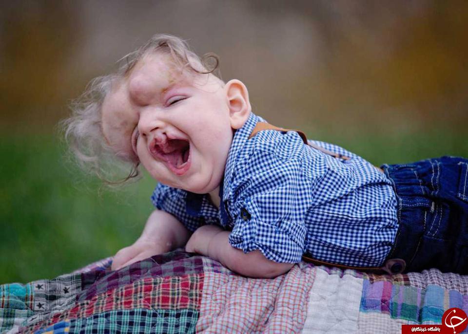 کودک عجیب که جمجمه ندارد! + تصاویر//
