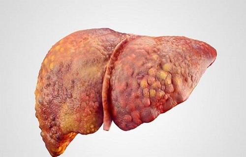وجود 190 هزار مبتلا به هپاتیت C در ایران/تزریق آلوده یکی از شایعترین راه انتقال ویروس هپاتیت