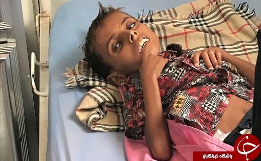 یونیسف تأیید کرد: مرگ کودک یمنی 10 ساله بر اثر سوء تغذیه
