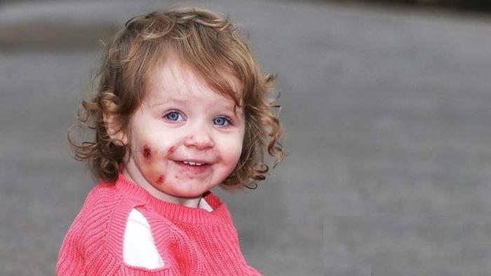 پسربچه وحشی دختر 17 ماهه را تا سر حد مرگ کتک زد + عکس