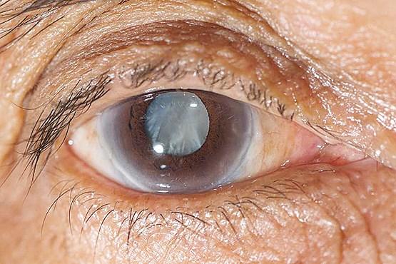 تشخیص تومورهای مغزی از روی انحرافات چشم/ افزایش ناچیز تعرفههای چشم پزشکی