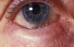 بیماری که زیبایی را از چشمانتان میگیرد/ «آنتروپیون» را بیشتر بشناسید