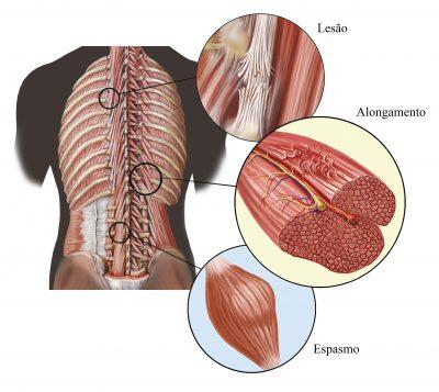 علت اصلی گرفتگی عضلات/ چگونه از شر «اسپاسم عضلانی» خلاص شویم؟