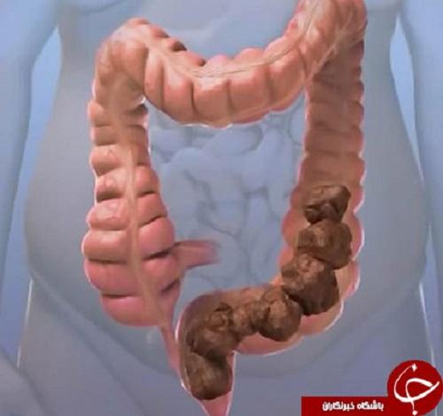 فوت و فنی سریع برای درمان یبوست/موادی که اجابت مزاج را راحت میکند