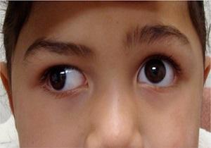اضطراب و استعمال دخانیات دوبینی و جلوآمدگی چشم را تشدید میکند
