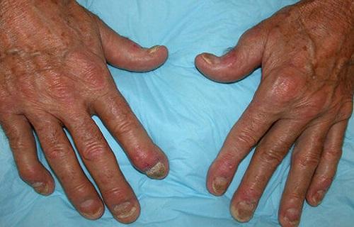 HLA چیست؟/تشخیص افتراقی بیماریها بر اساس HLA